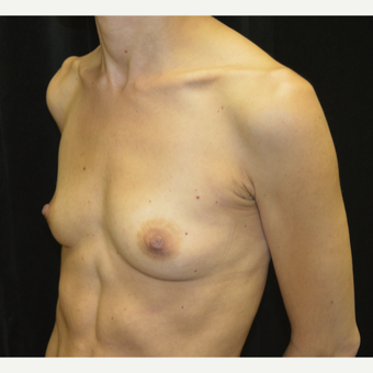 35-44 year old woman treated with Breast Augmentation before 3423887