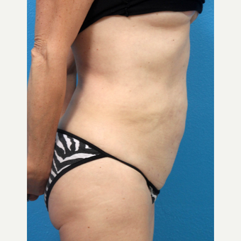 35-44 year old woman treated with Liposuction after 3227335