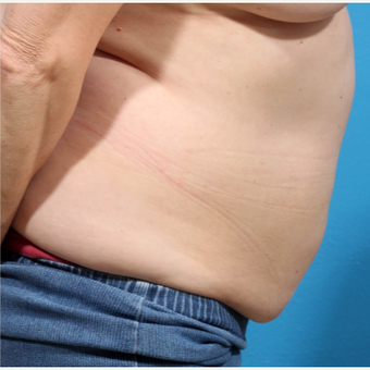35-44 year old woman treated with Liposuction before 3227335