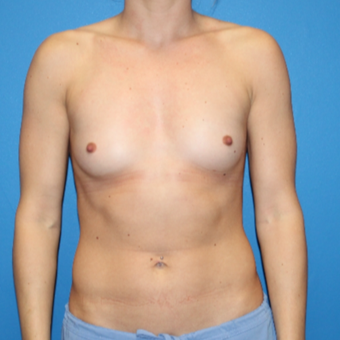 25-34 year old woman treated with Breast Augmentation before 3281361