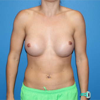 25-34 year old woman treated with Breast Augmentation after 3281361