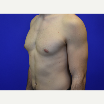 25-34 year old man treated with Male Breast Reduction before 3259677
