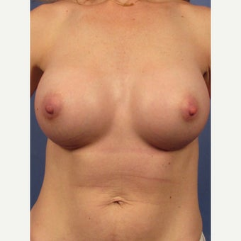 35-44 year old woman treated with Breast Implants after 1957063