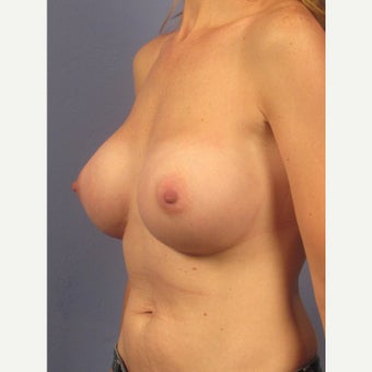 35-44 year old woman treated with Breast Implants 1957063