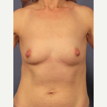 35-44 year old woman treated with Breast Implants before 1957063