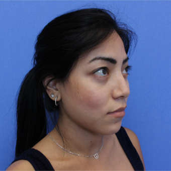 25-34 year old woman treated with Revision Rhinoplasty before 3377798