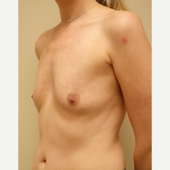 35-44 year old woman treated with Breast Augmentation before 3037751