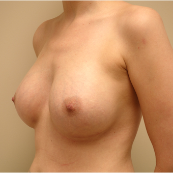 35-44 year old woman treated with Breast Augmentation after 3037751
