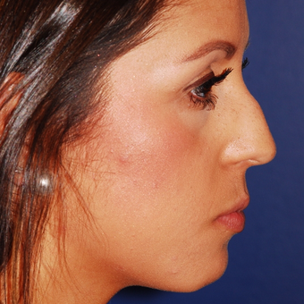 25-34 year old woman treated with Rhinoplasty before 3624308