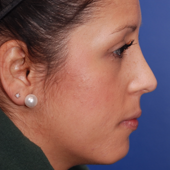 25-34 year old woman treated with Rhinoplasty after 3624308