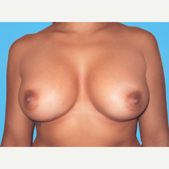 Breast Augmentation after 3732718