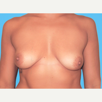 Breast Augmentation before 3732718