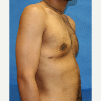 35-44 year old man treated with Male Breast Reduction after 3292208