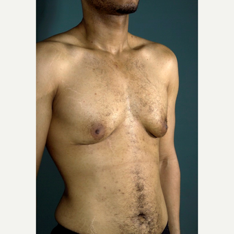 35-44 year old man treated with Male Breast Reduction before 3292208