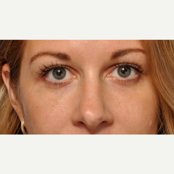 Under Eye Fillers with Bruiseless Technique after 3691670