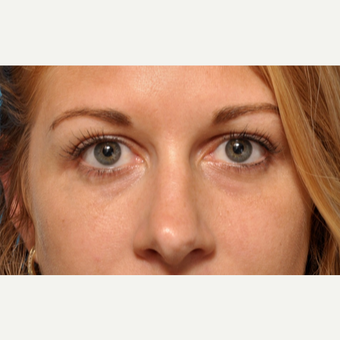 Under Eye Fillers with Bruiseless Technique before 3691670