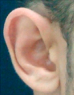 25-34 year old man treated with Ear Surgery before 3817603