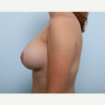 Breast Augmentation after 3459860