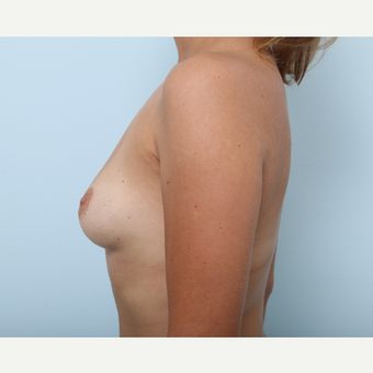 Breast Augmentation before 3459860