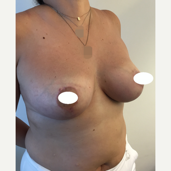 35-44 year old woman treated with Breast Reduction after 3068931