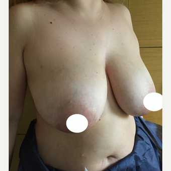 35-44 year old woman treated with Breast Reduction before 3068931