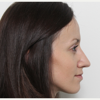 25-34 year old woman treated with Rhinoplasty after 3340341