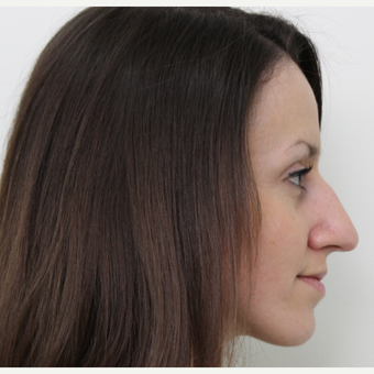 25-34 year old woman treated with Rhinoplasty before 3340341