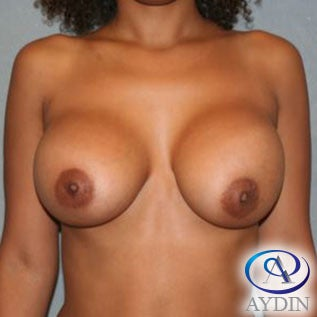 25-34 year old woman treated with Breast Augmentation after 3259712
