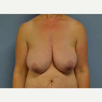 35-44 year old woman treated with Breast Reduction before 3531100