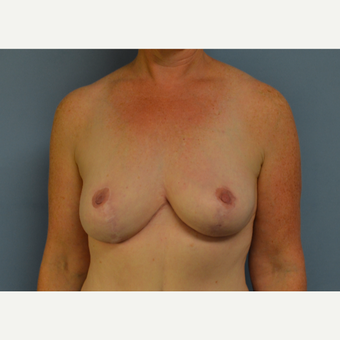 35-44 year old woman treated with Breast Reduction after 3531100