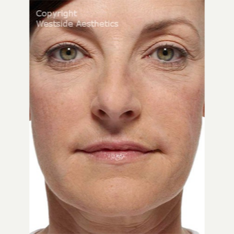 Radiesse Nasolabial Folds and Corners of Mouth after 2972648