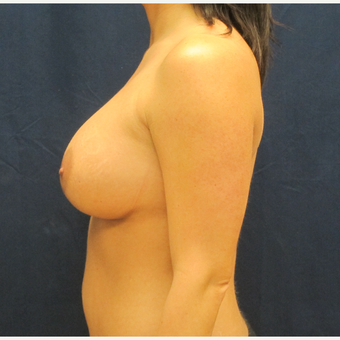 35-44 year old woman treated with Breast Implants after 3301186