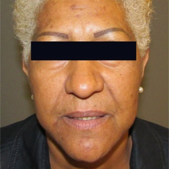 45-54 year old woman treated with Lip Augmentation before 1946372