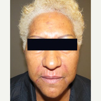 45-54 year old woman treated with Lip Augmentation after 1946372