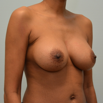 Breast augmentation with Natrelle 410 Shaped Implants after 3009835