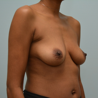 Breast augmentation with Natrelle 410 Shaped Implants before 3009835