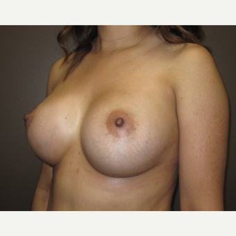 35-44 year old woman treated with Breast Augmentation after 3424555
