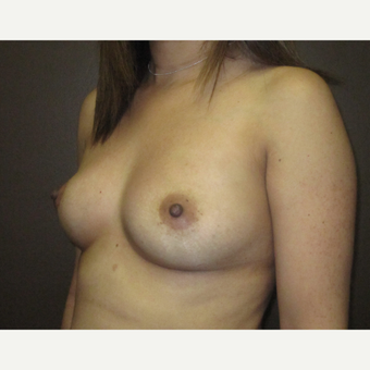 35-44 year old woman treated with Breast Augmentation before 3424555