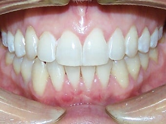 Very crowded upper and lower teeth treated with Invisalign  after 930236