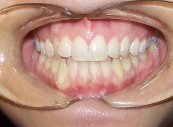 Very crowded upper and lower teeth treated with Invisalign  before 930236