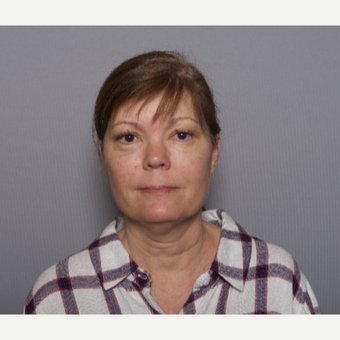 45-54 year old woman treated with Facelift before 3605965