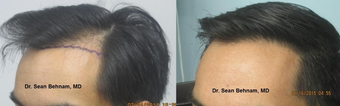 25-34 year old man treated with FUE Hair Transplant