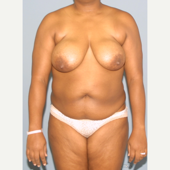 25-34 year old woman treated with Mommy Makeover before 3502586