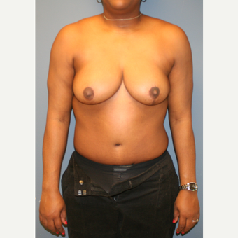 25-34 year old woman treated with Mommy Makeover after 3502586