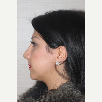 25-34 year old woman treated with Rhinoplasty after 3130065
