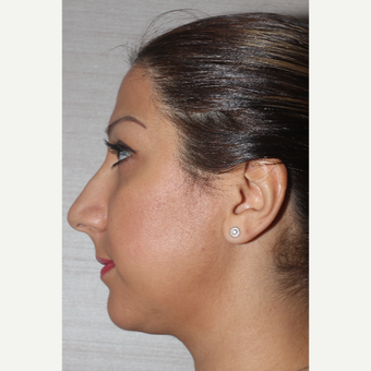 25-34 year old woman treated with Rhinoplasty before 3130065