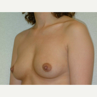 32 y/o Transaxillary Submuscular Breast Augmentation before 3066368