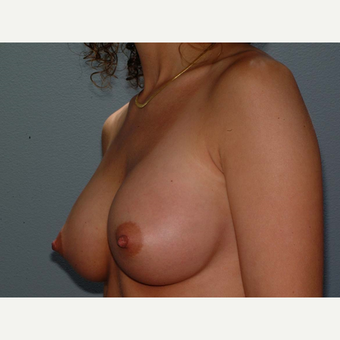 32 y/o Transaxillary Submuscular Breast Augmentation after 3066368