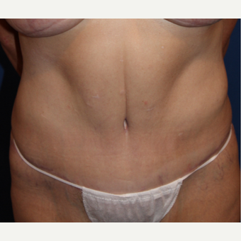 45-54 year old woman treated with abdominoplasty after 3738892
