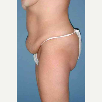 35-44 year old woman treated with No-Drain Tummy Tuck before 3649380